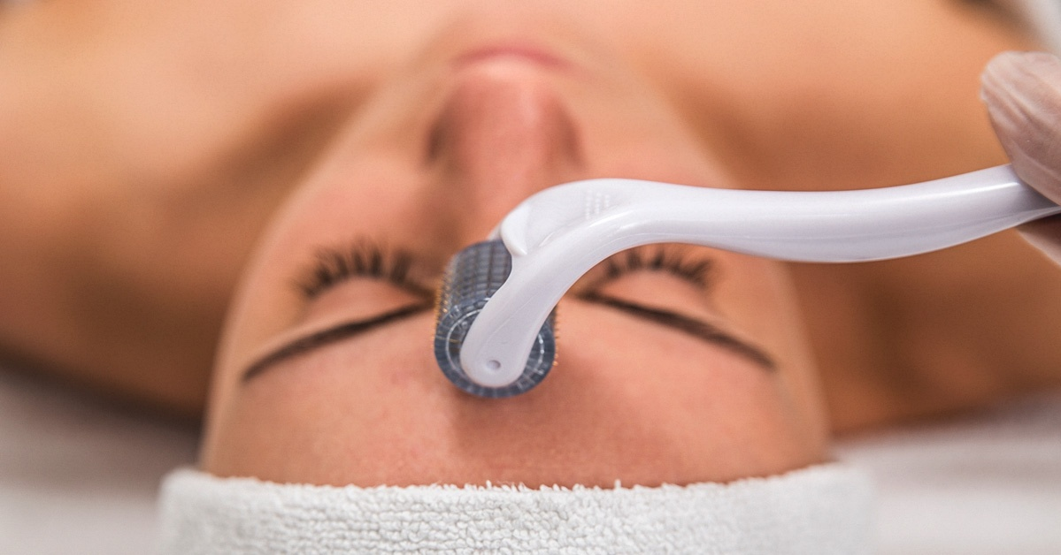 microneedling-face-1200x628-facebook Cropped